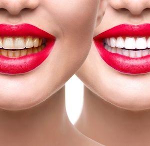 DATE NIGHT WHITE Teeth Whitening INSTANT